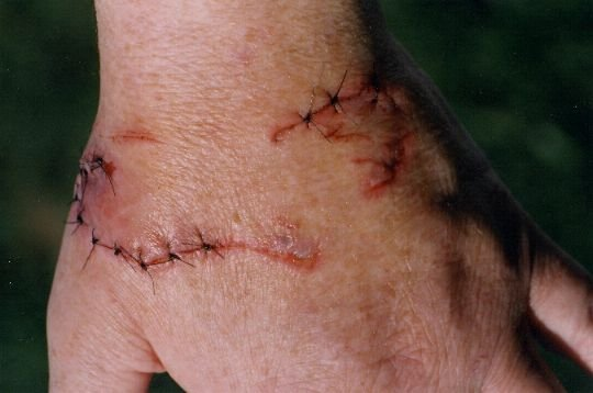 Iguana Bite wounds - Very graphic | Our Reptile Forum